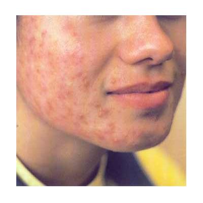 Acne behandeling met Bioptron lamp