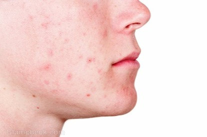 Acne behandeling? Bioptron