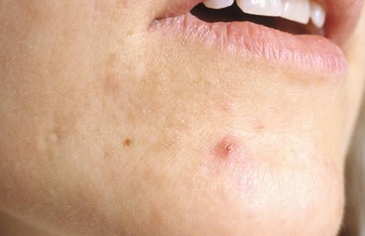 acne behandeling therapie